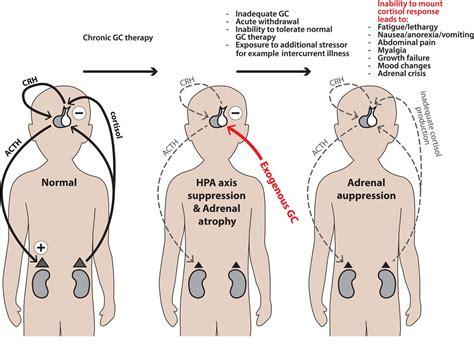 adrenal suppression picture 3