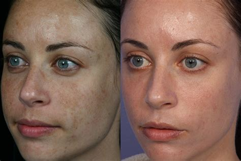 laser stretch mark removal dermatology picture 10