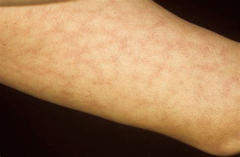 skin rash livedo picture 2