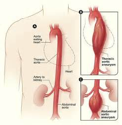 endovascular liver biopsy procedure picture 5