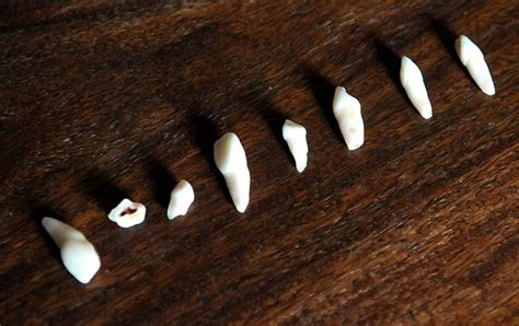 dream of teeth falling out picture 19