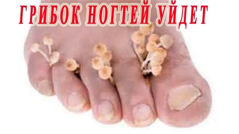 can toe nail fungus goaway picture 6