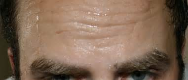 acidify in scalp hair picture 15
