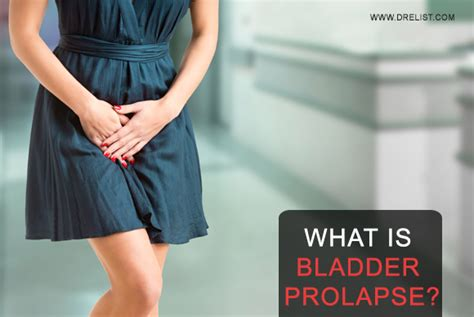 what to expect after surgery for fallen bladder picture 1