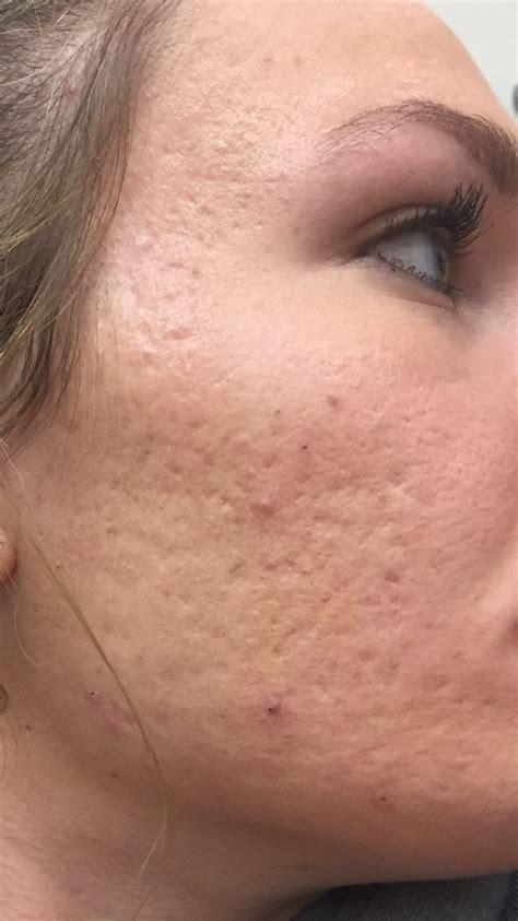 acne scars message board picture 15