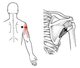 minor muscle pain relief picture 5