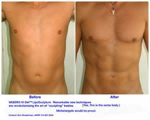 breast augmentation nyc picture 6