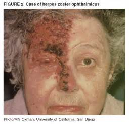 symptoms of herpes zoster picture 3