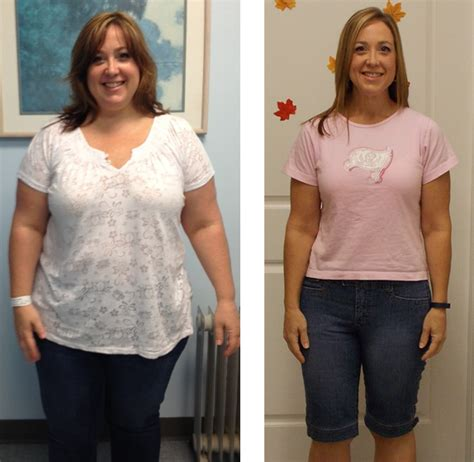 weight loss surger picture 17