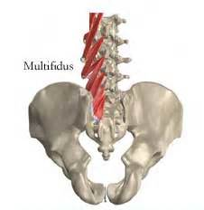 mri and spinal muscle atrophy of multifidus and picture 5