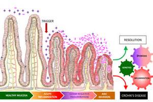 the latest treatment for colitis in humans dec. picture 6