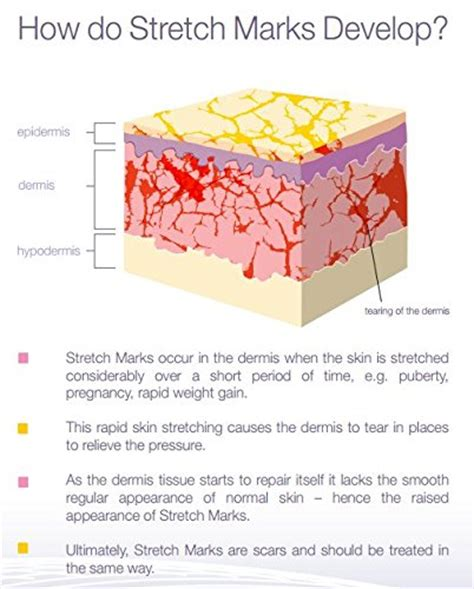 advanced glycation cause skin stretch marks picture 14