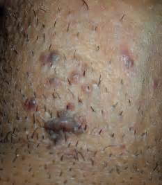 genital warts in area picture 1