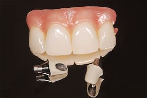can dental hygients remove cement from teeth with picture 7