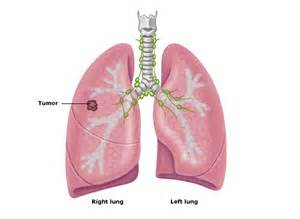 natural supplements for lung cancer picture 1