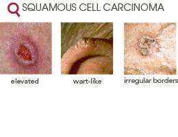 prognisis in squamous skin cell carcinoma picture 2