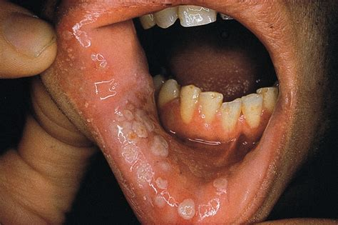 hiv and herpes picture 2