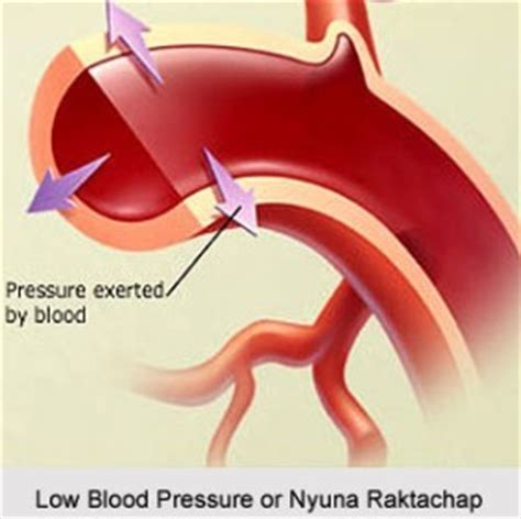 consequences of low bp in dialysis patients picture 9