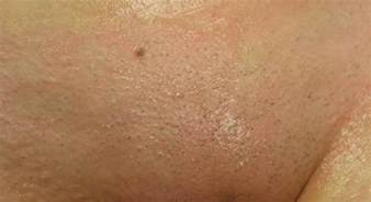 hair removal st. louis picture 1