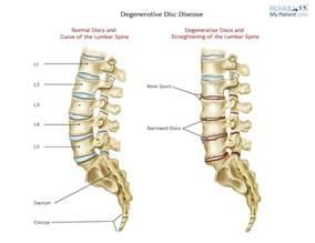 cream for degenerative spine disease picture 1
