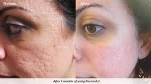 treatment of choice for pitted acne scars picture 2