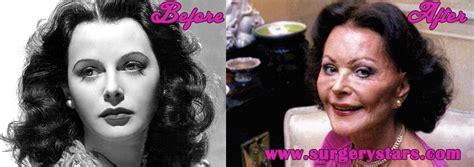 breast enhancement photos picture 9