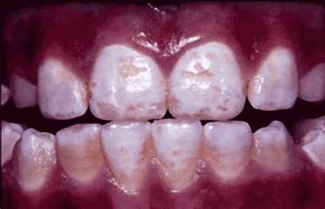 fluoride treatment for teeth picture 15