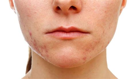 does purbac help with skin problems caused by picture 6