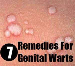 treatment for genital warts picture 5