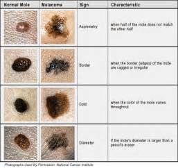 about skin cancer picture 13