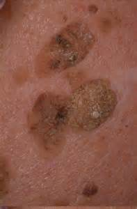 milia skin picture 9