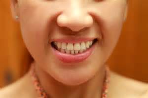 ways to whiten your teeth picture 2