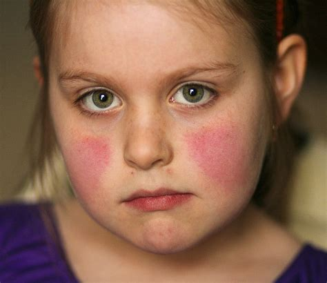 celiac and skin picture 5