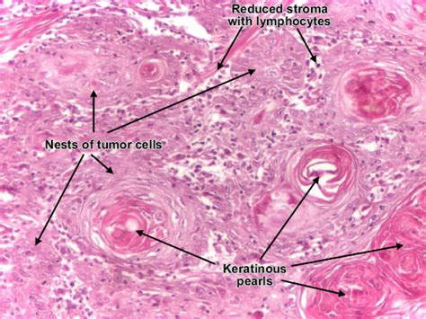 advanced squamous cell skin cancer picture 13