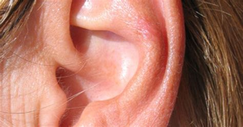 herpes and the ear picture 14