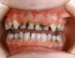 babies rotten teeth picture 1