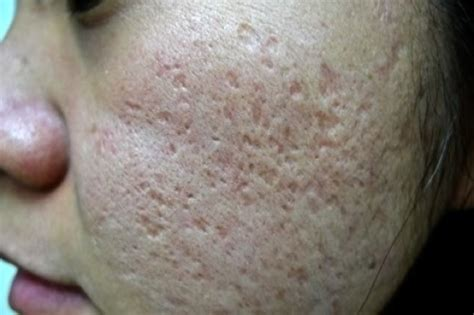 icepick acne scars picture 15