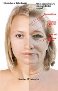 botex breast enlargement picture 2