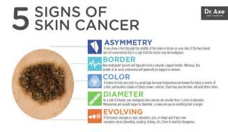 stages of skin cancer picture 1
