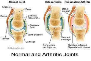 artho bone joint picture 5