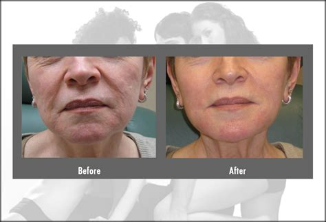 laser hair removal ct picture 13