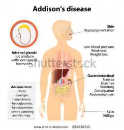 Addisons disease, intestinal problems picture 2