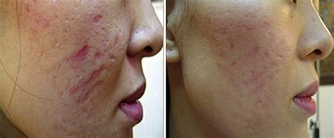 cover acne pit scar skin picture 5
