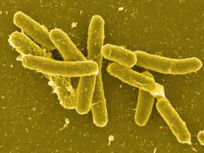 bacterial characteristics of salmonella picture 2