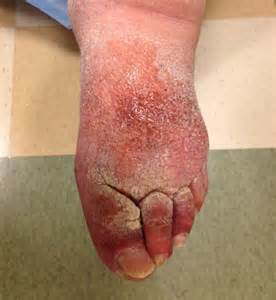 lymphedema skin disorder picture 1