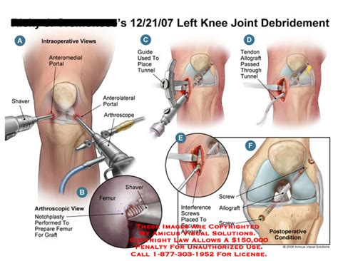 overstuffed knee joint replacement repair picture 8