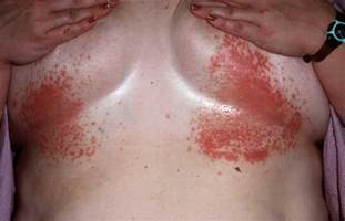 red small circle skin rash picture 6