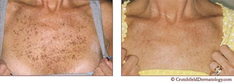 aging spots cure picture 15