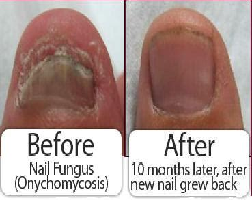 premier nail fungus chicago picture 2