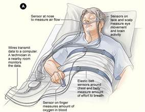 protocol for scoring hypopneas in polysomnography sleep study picture 7